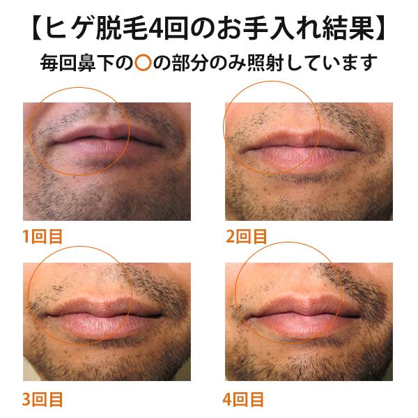 ヒゲ脱毛(鼻下)before after